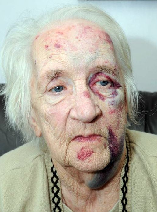 EIGHT YEARS FOR THUG WHO BEAT UP OLD LADY